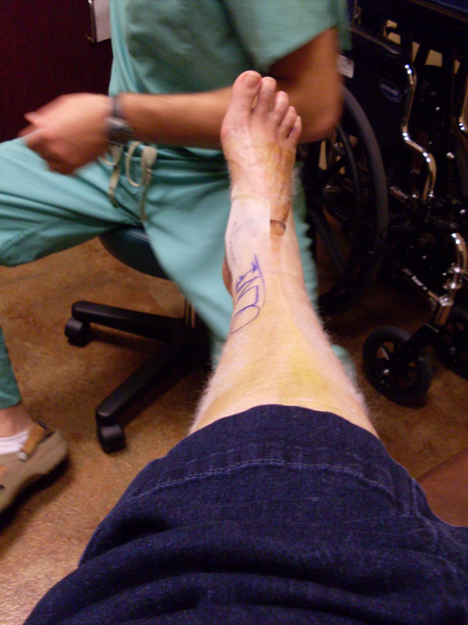 Post-Surgery Photos | KayeDacus.com
