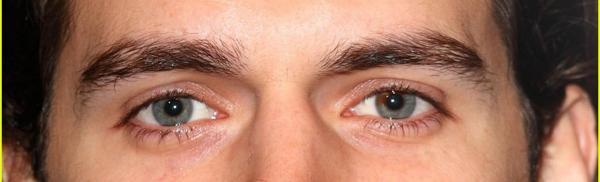 Andrew's Eyes
